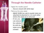 through the needle catheter21