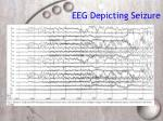 eeg depicting seizure