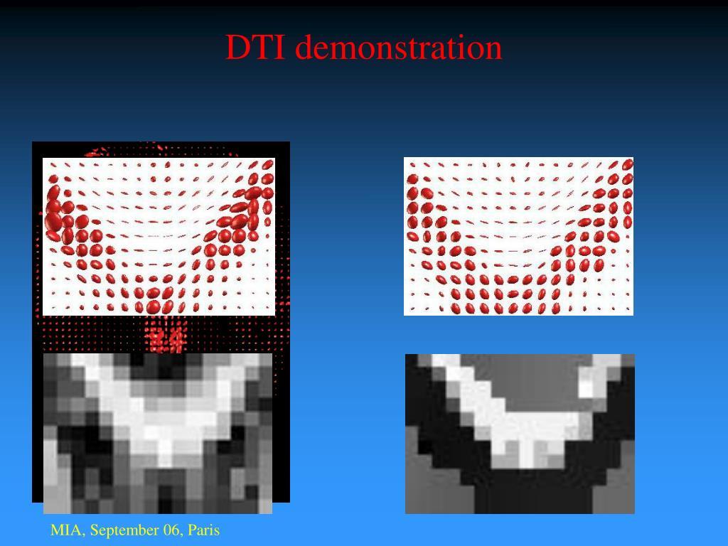 DTI demonstration