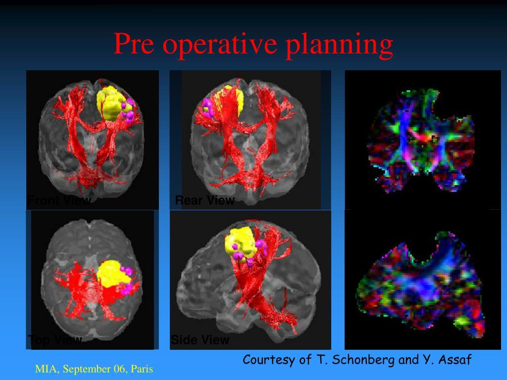 Pre operative planning