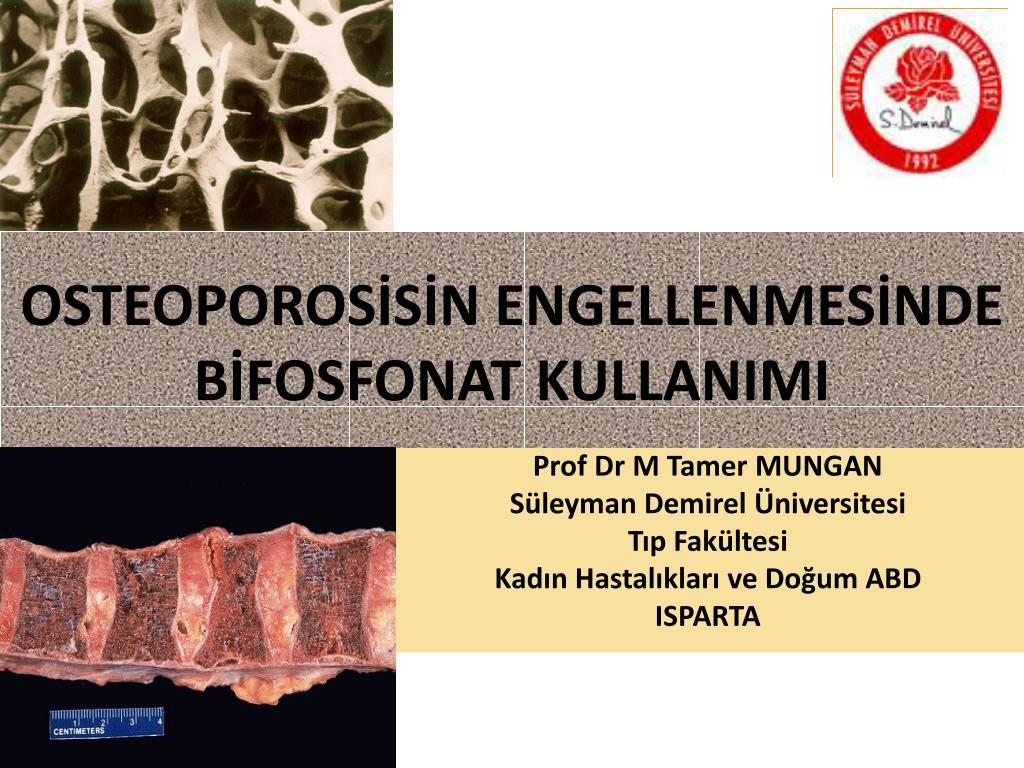 osteoporos s n engellenmes nde b fosfonat kullanimi l.