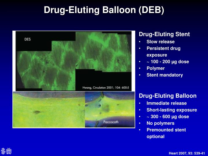 Drug-Eluting Balloon (DEB)