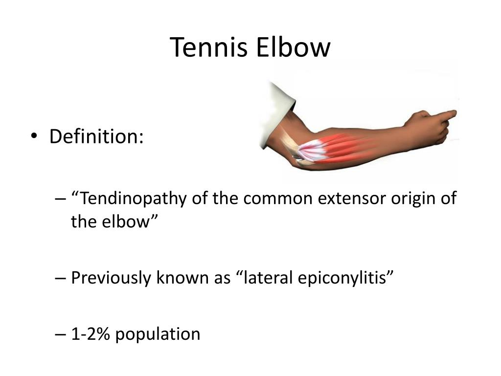 ppt - tennis elbow powerpoint presentation - id:543149