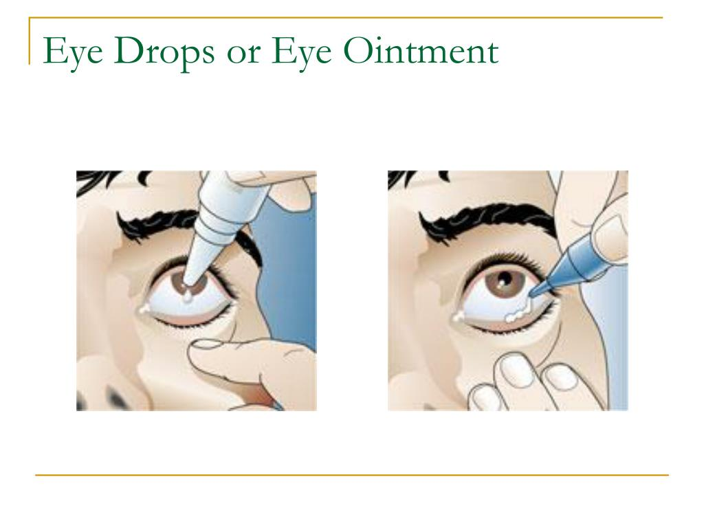 Eye Drops or Eye Ointment