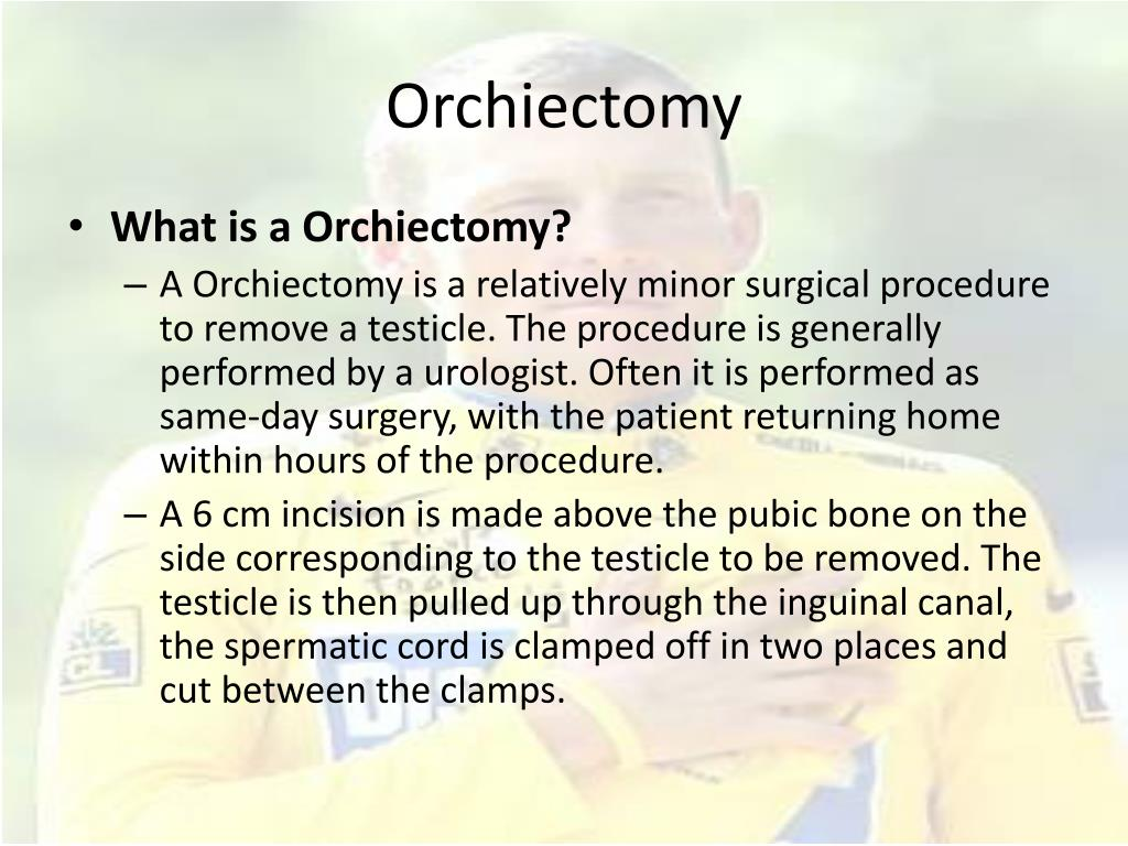 Orchiectomy
