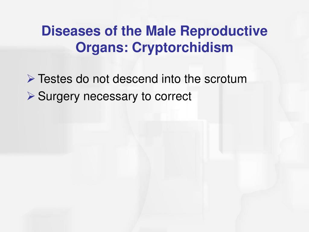 Diseases of the Male Reproductive Organs: Cryptorchidism