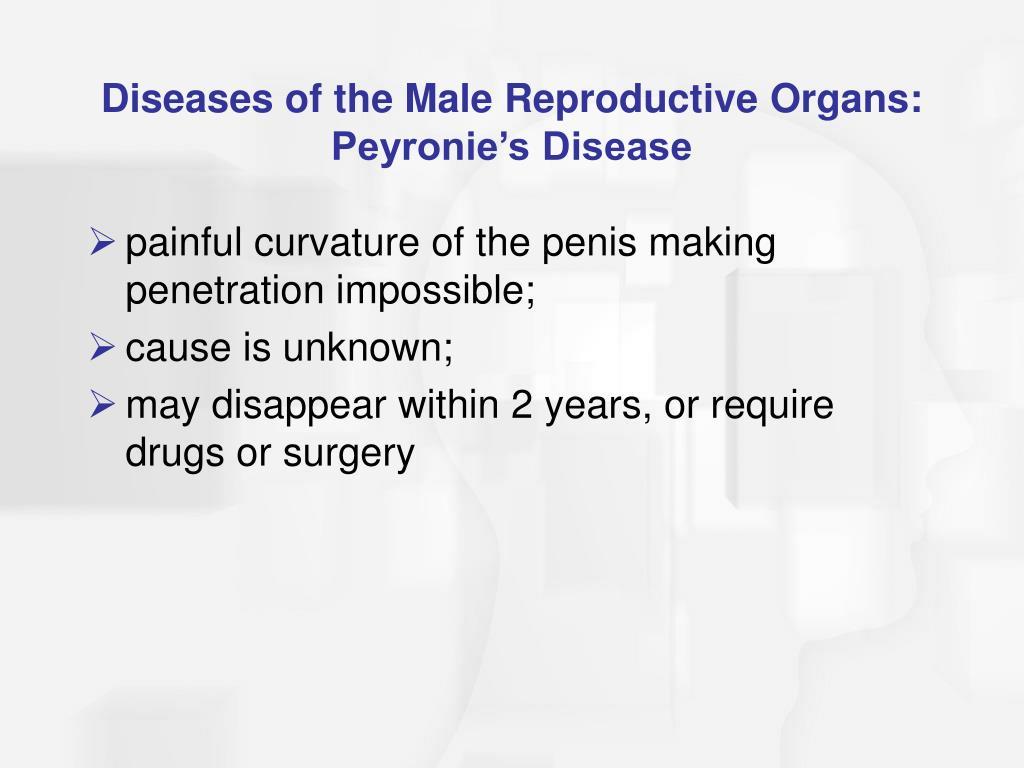 Diseases of the Male Reproductive Organs: Peyronie's Disease