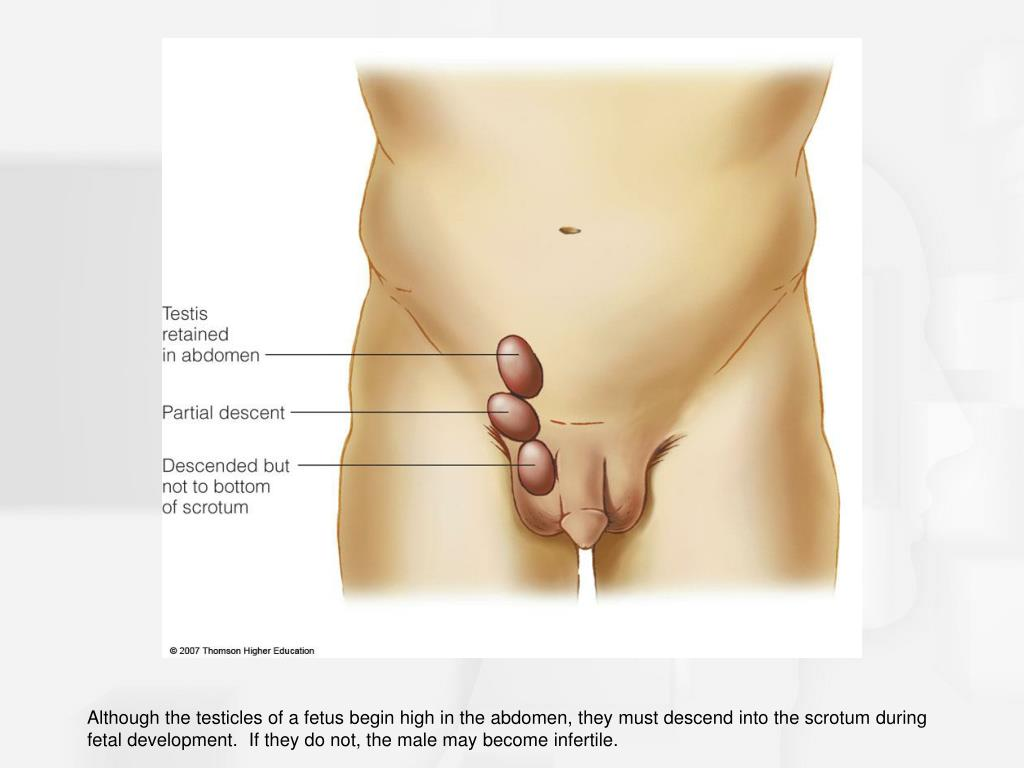 Although the testicles of a fetus begin high in the abdomen, they must descend into the scrotum during fetal development.  If they do not, the male may become infertile.