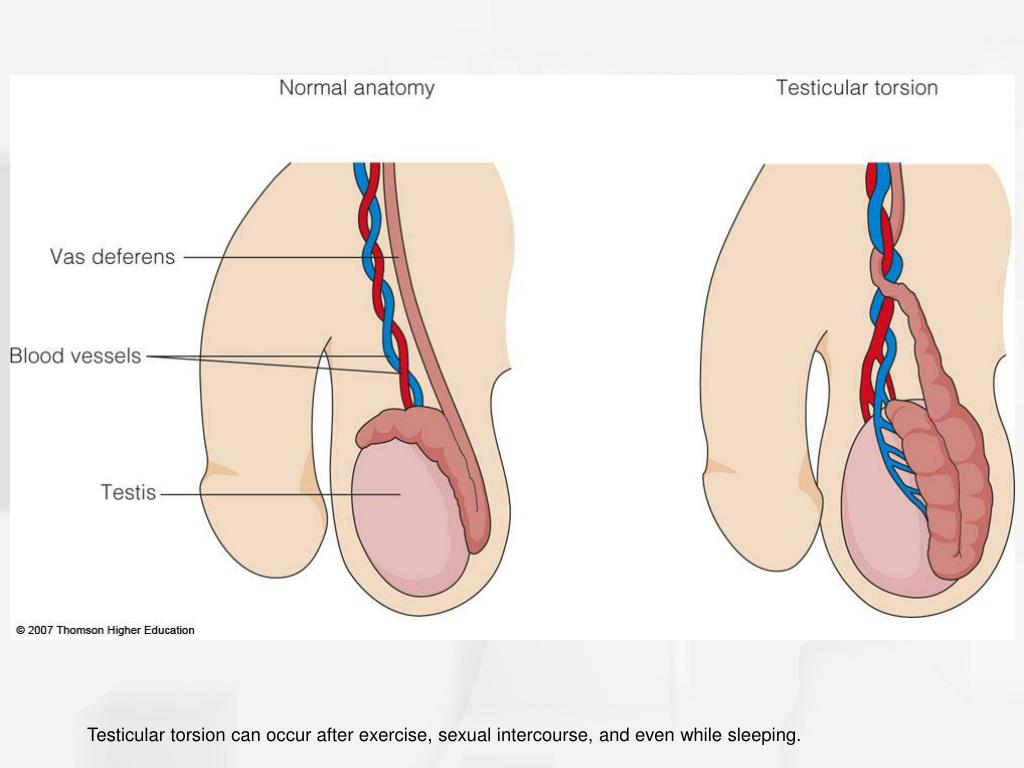 Testicular torsion can occur after exercise, sexual intercourse, and even while sleeping.