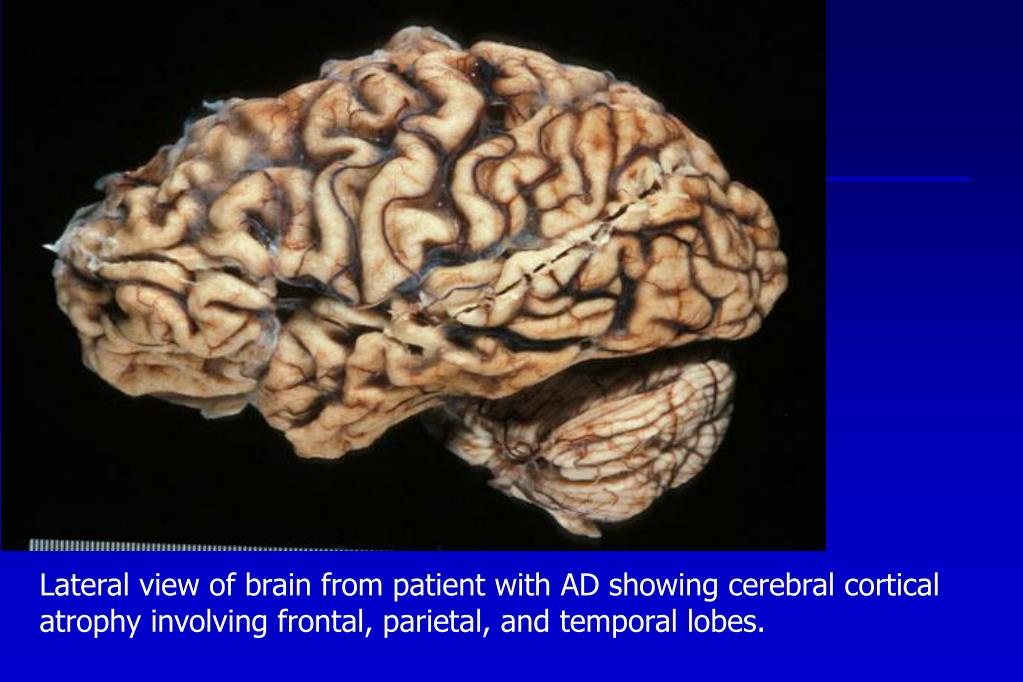 Lateral view of brain from patient with AD showing cerebral cortical