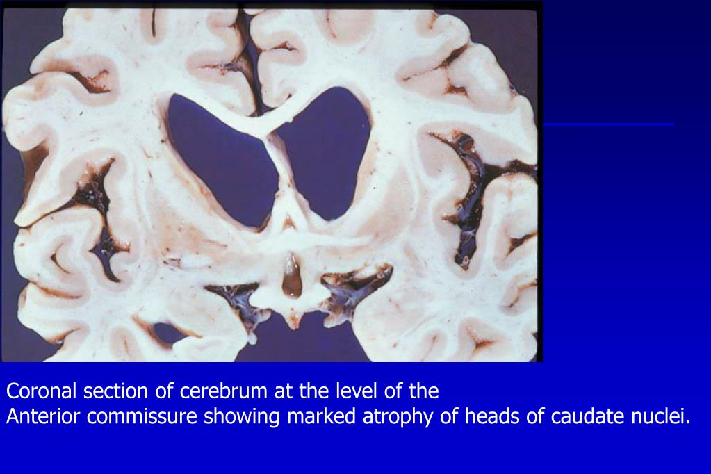 Coronal section of cerebrum at the level of the