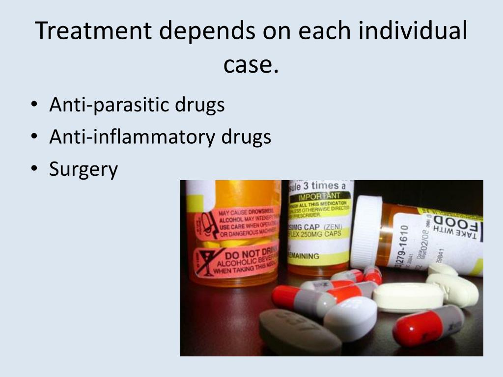 Treatment depends on each individual case.