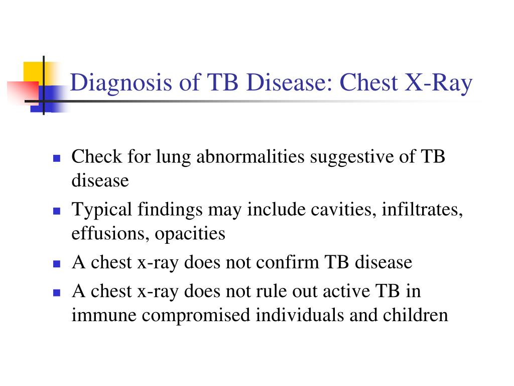 Diagnosis of TB Disease: Chest X-Ray