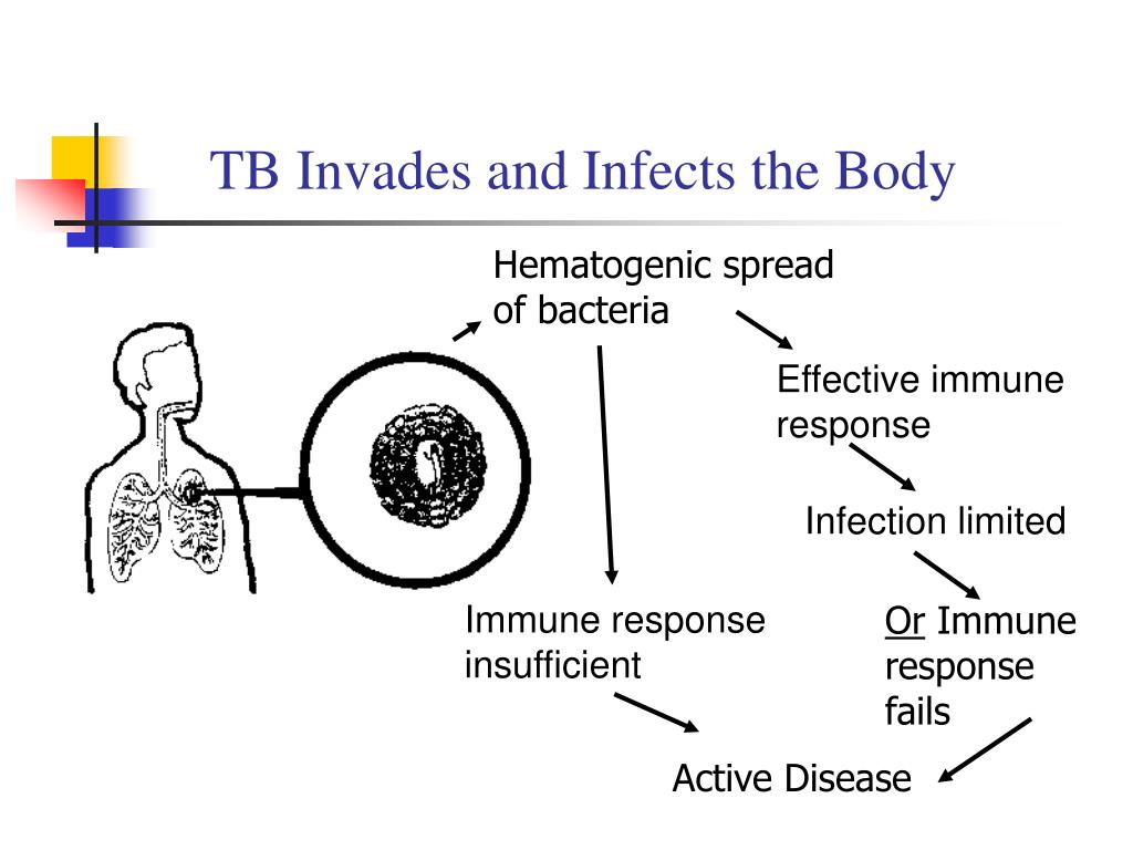 TB Invades and Infects the Body