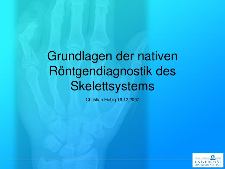 PPT - Grundlagen der nativen Röntgendiagnostik des Skelettsystems ...