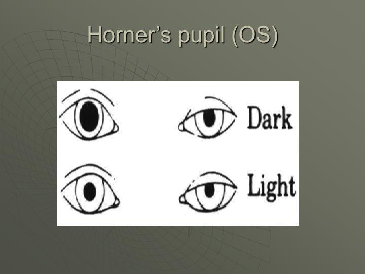 Horner's pupil (OS)