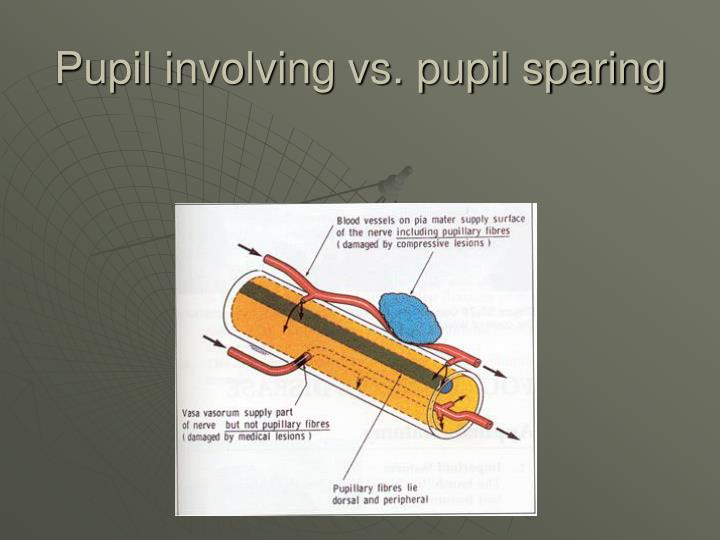 Pupil involving vs. pupil sparing