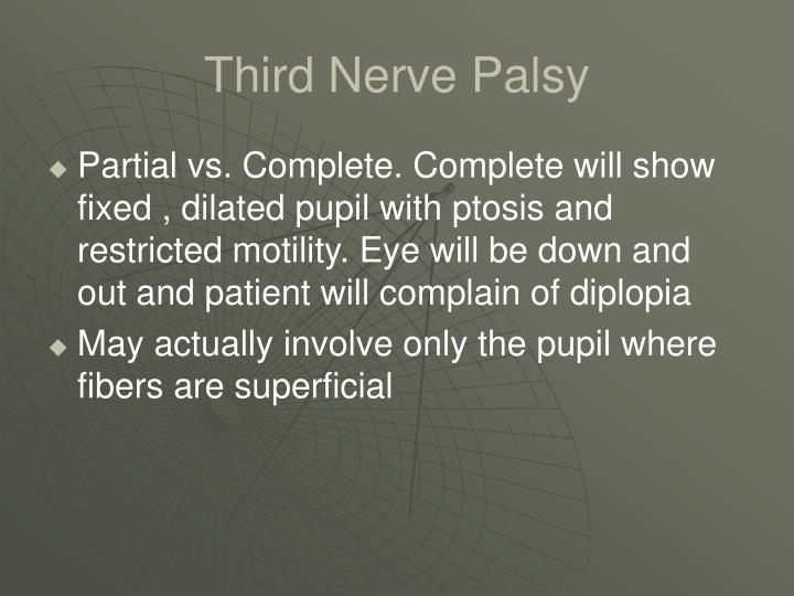 Third Nerve Palsy