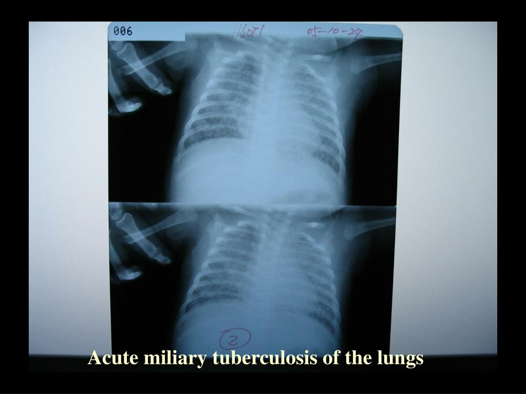 Acute miliary tuberculosis of the lungs