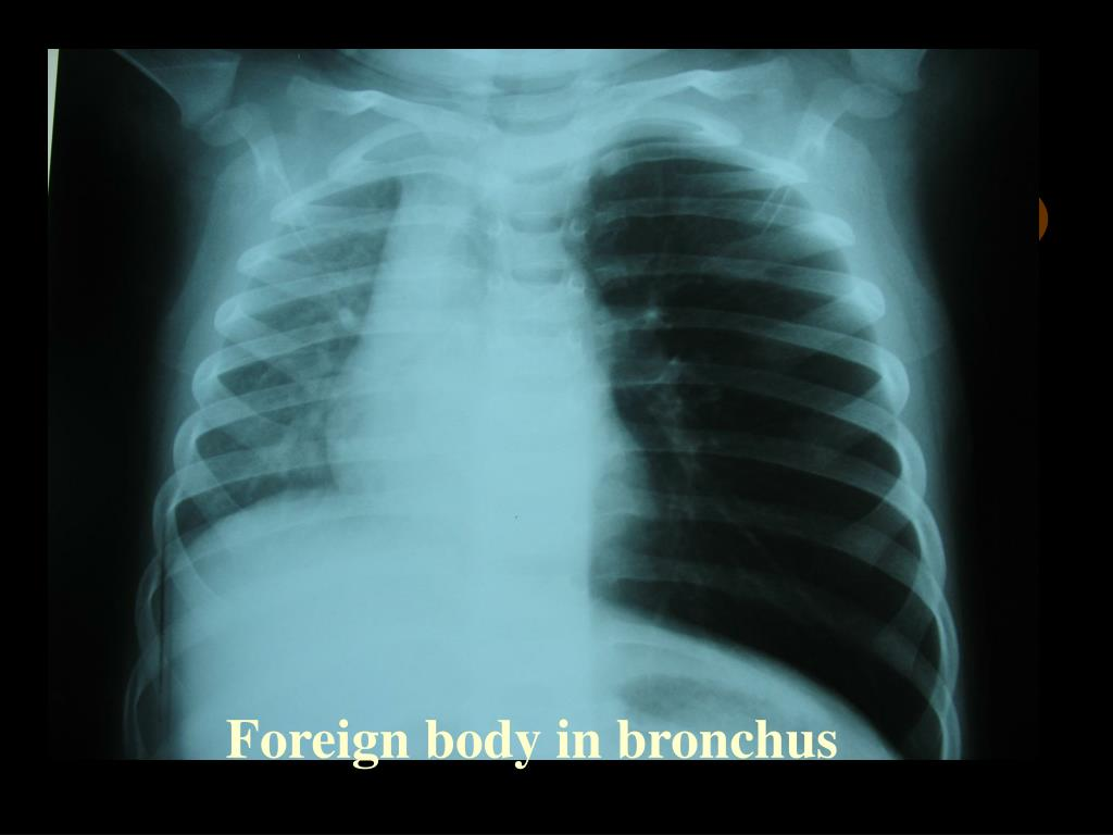 Foreign body in bronchus
