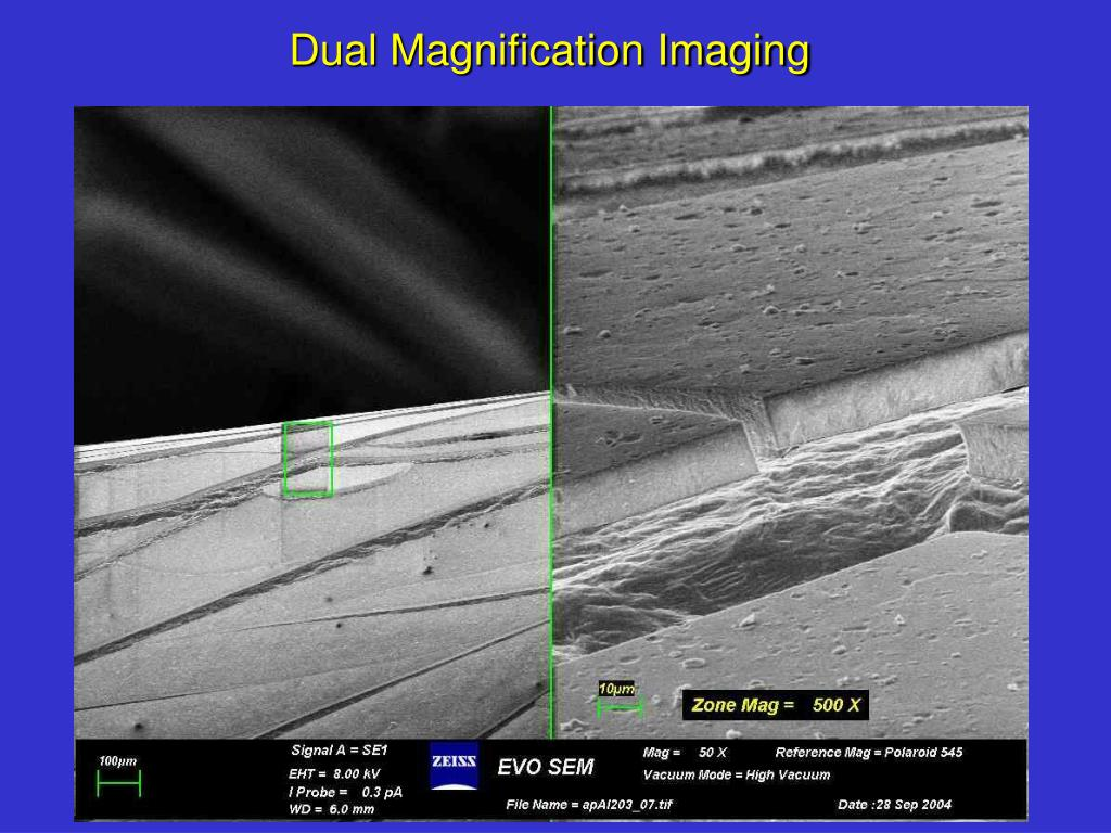 Dual Magnification Imaging