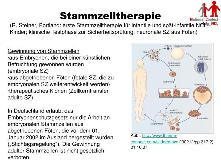 Stammzelltherapie