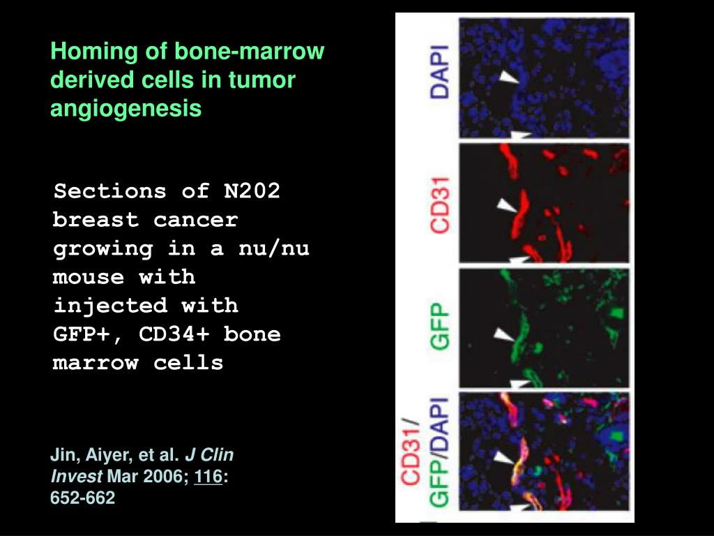 Homing of bone-marrow derived cells in tumor angiogenesis