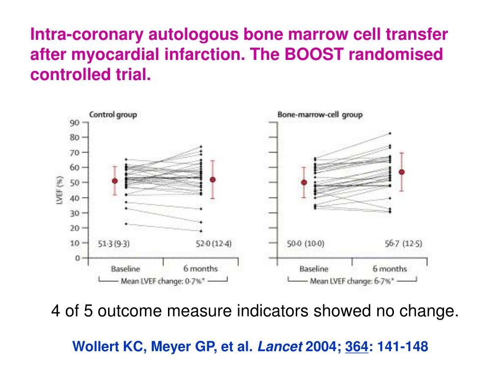 Intra-coronary autologous bone marrow cell transfer  after myocardial infarction. The BOOST randomised controlled trial.