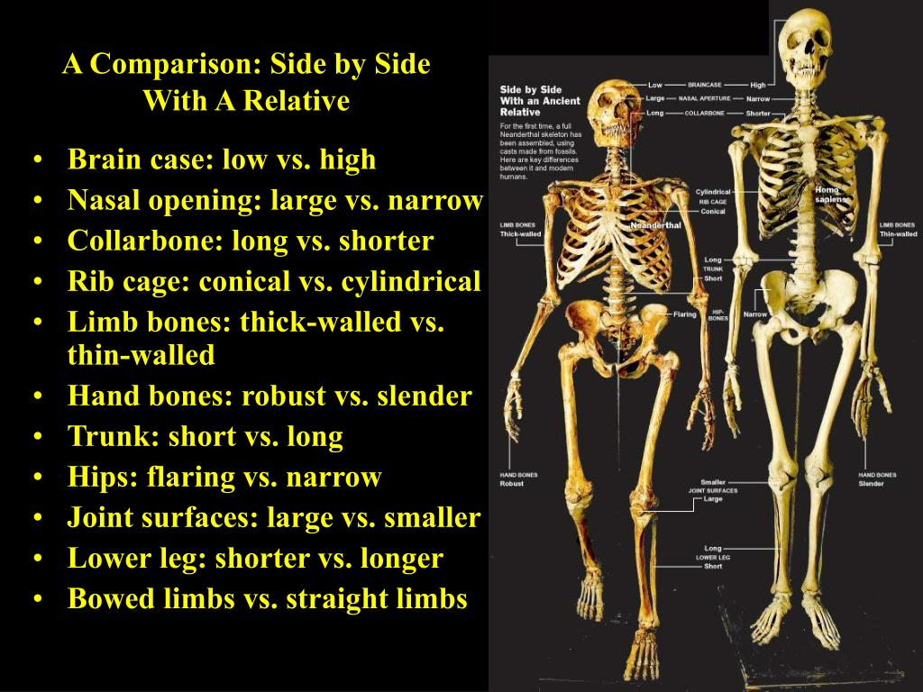 A Comparison: Side by Side With A Relative
