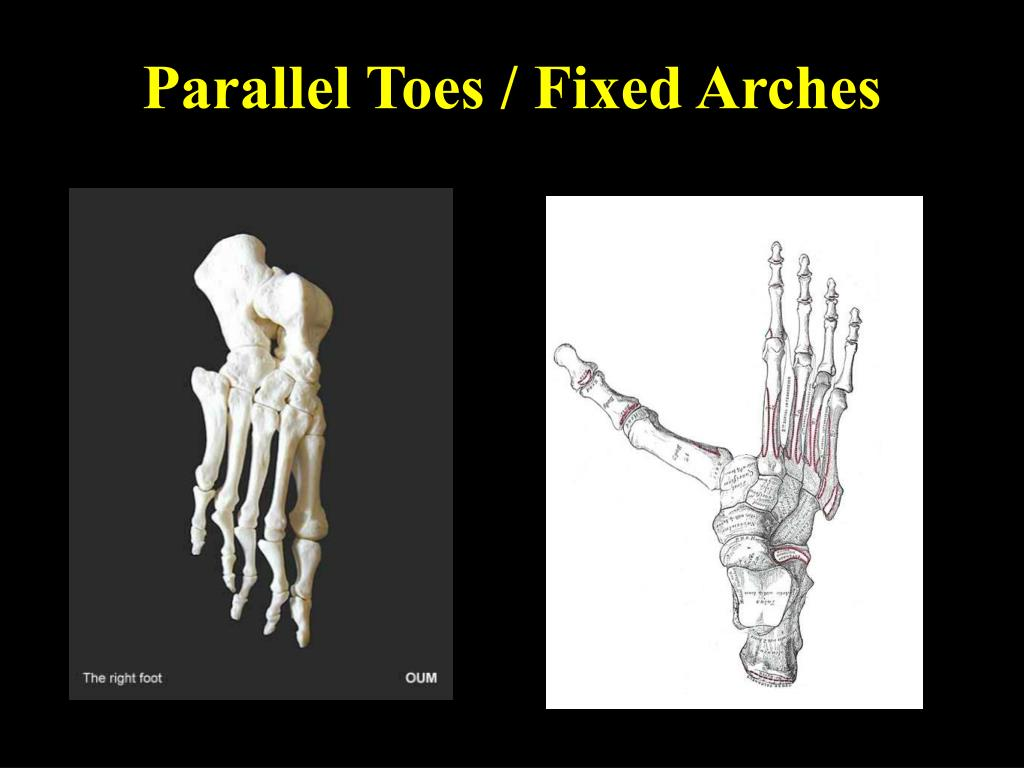 Parallel Toes / Fixed Arches