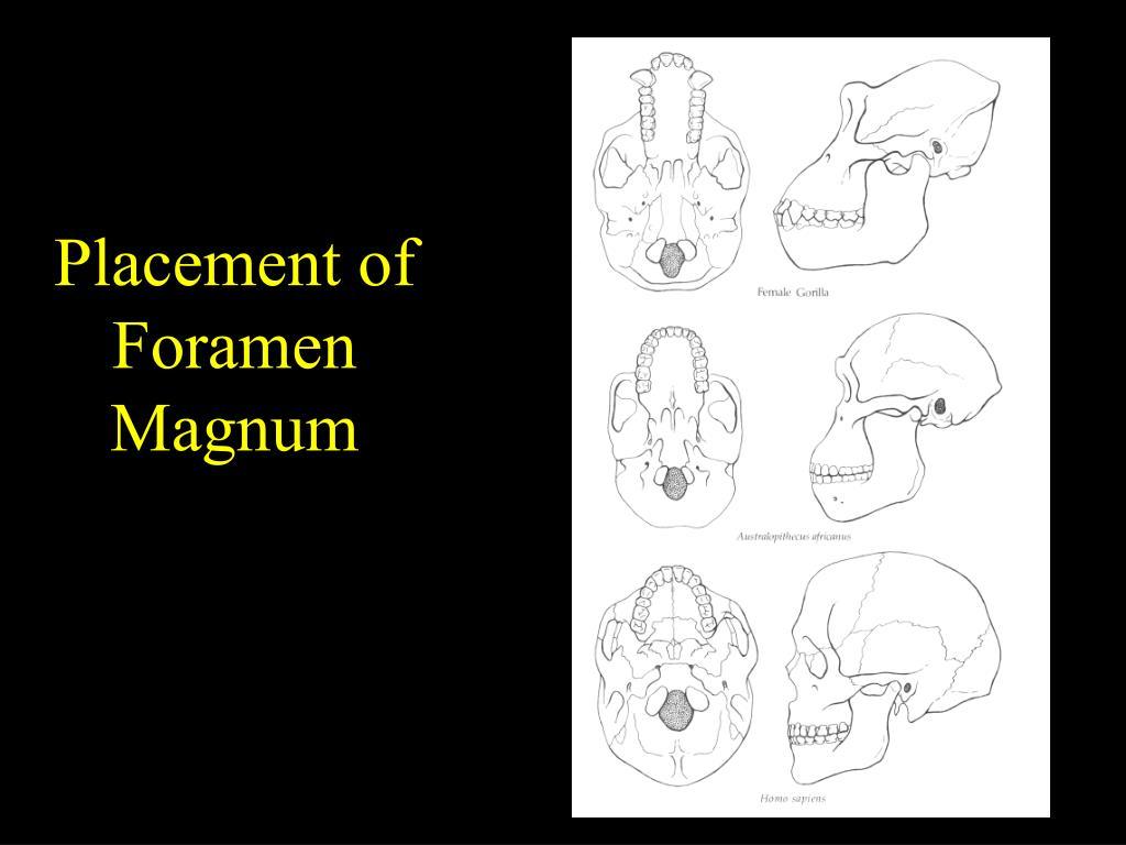 Placement of Foramen Magnum