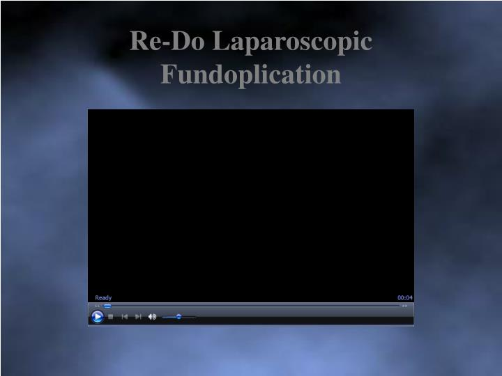 Re-Do Laparoscopic Fundoplication