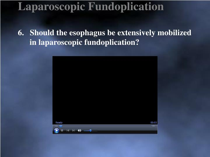 Laparoscopic Fundoplication