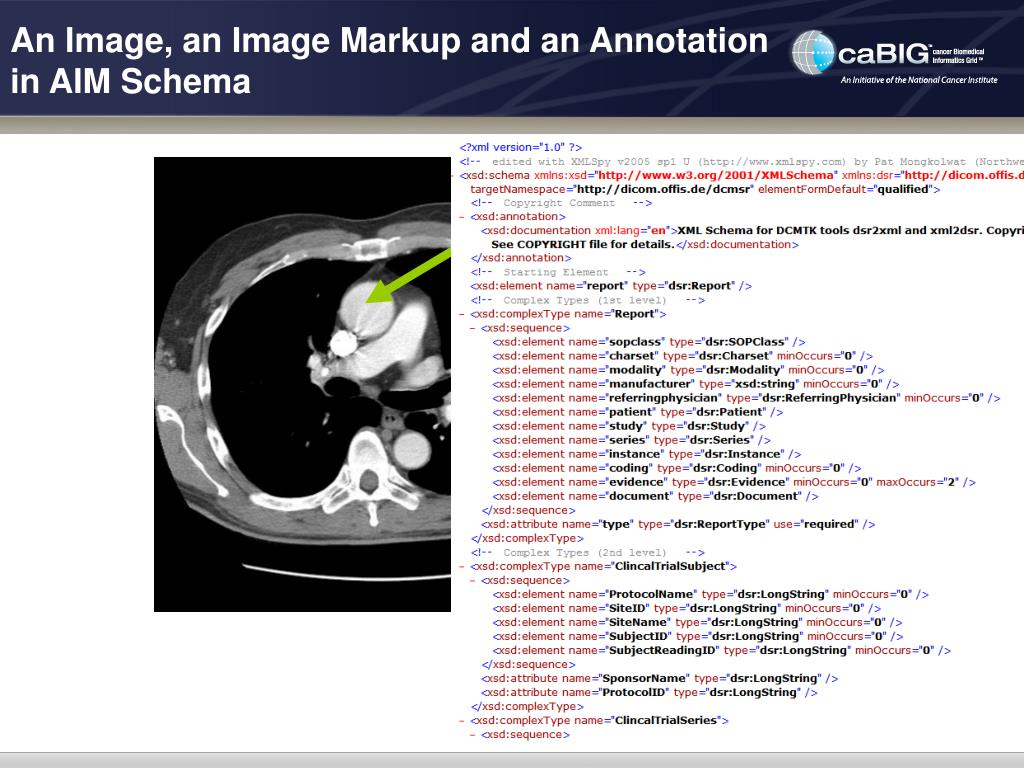An Image, an Image Markup and an Annotation