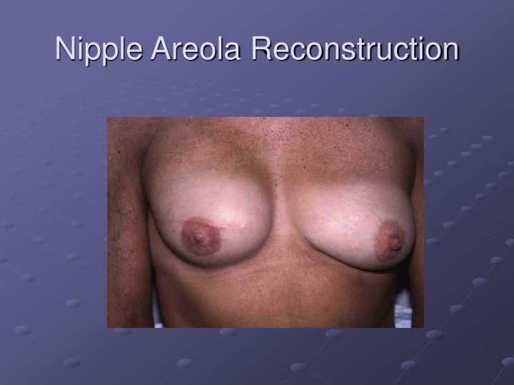 Nipple Areola Reconstruction