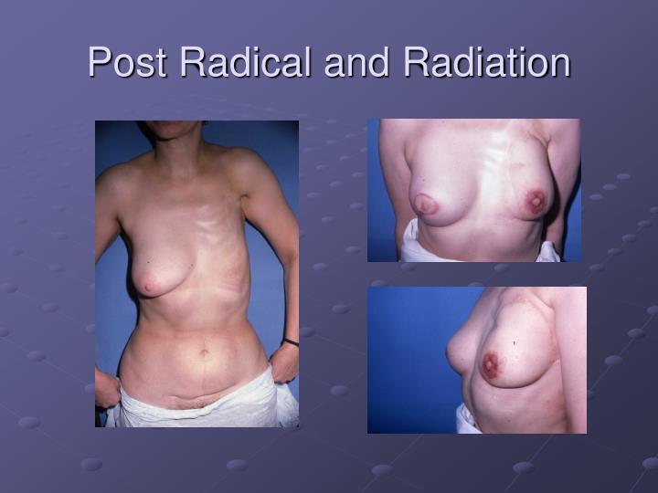 Post Radical and Radiation