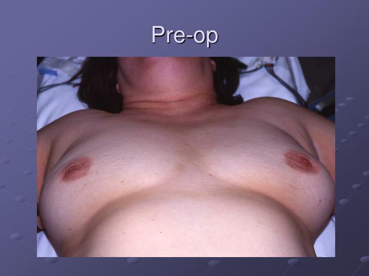 Pre-op
