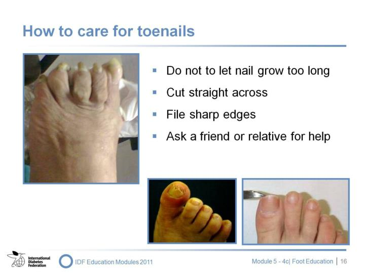 How to care for toenails