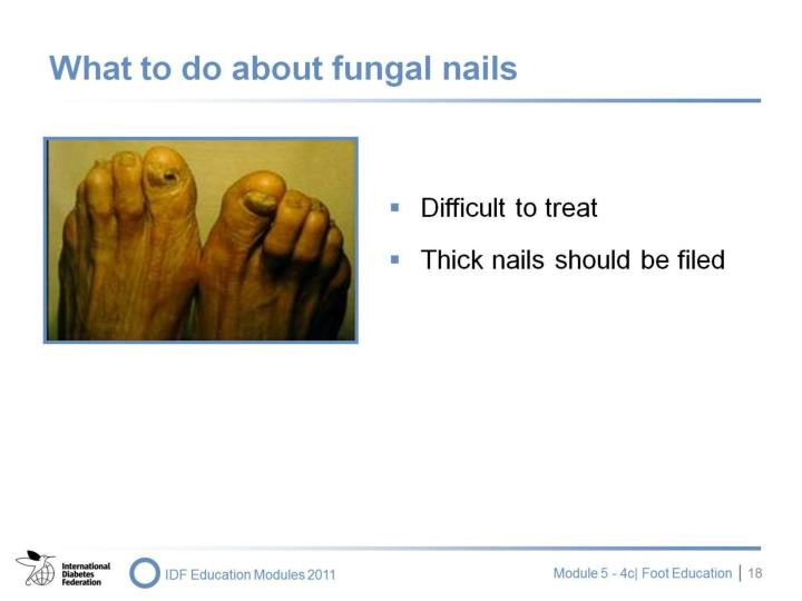 What to do about fungal nails