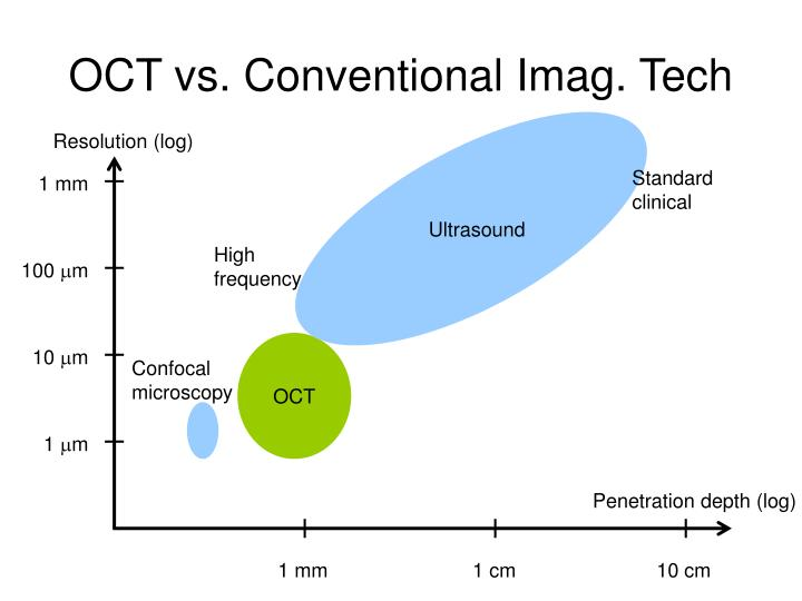 Oct vs conventional imag tech