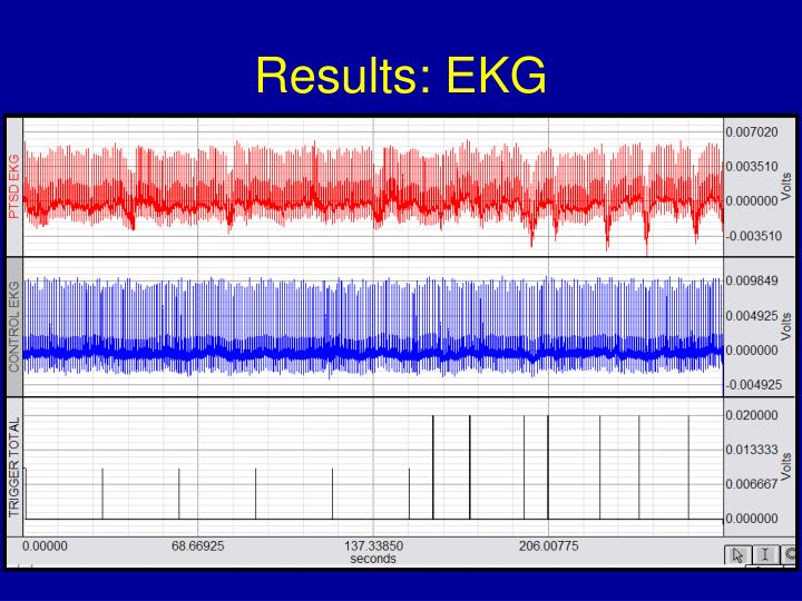 Results: EKG