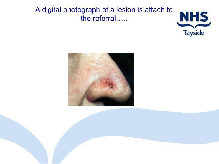 A digital photograph of a lesion is attach to the referral…..