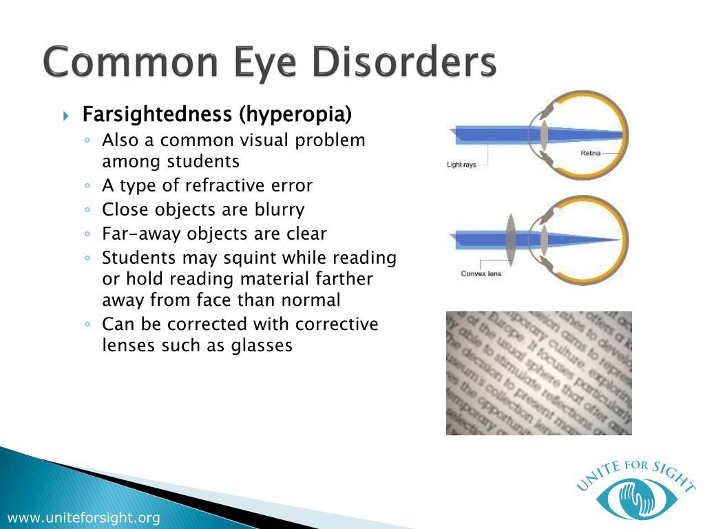 Common Eye Disorders