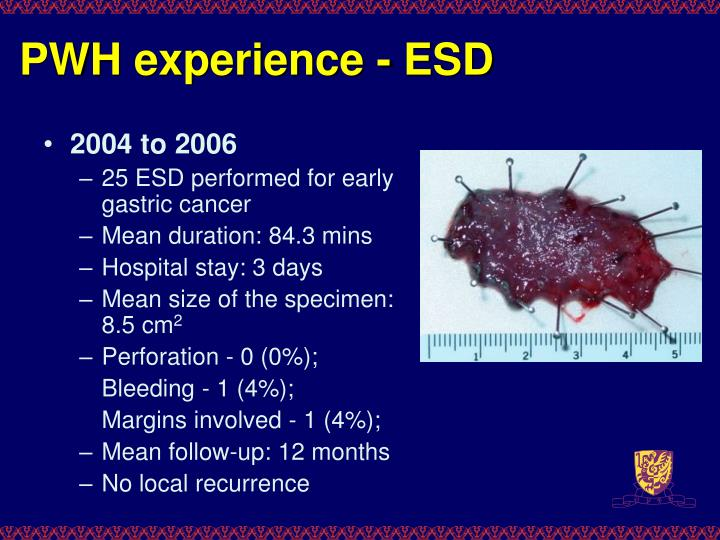 PWH experience - ESD