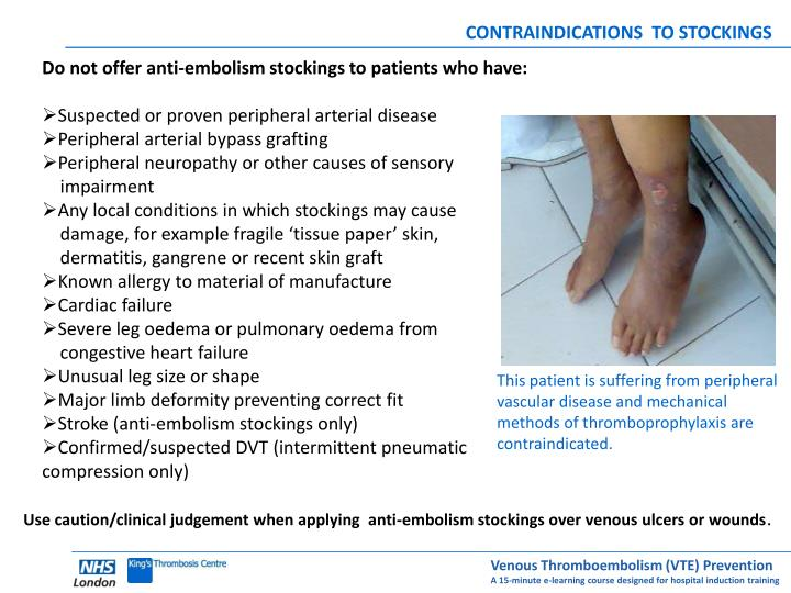 CONTRAINDICATIONS  TO STOCKINGS
