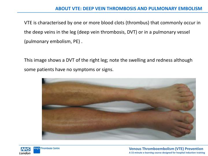 ABOUT VTE: DEEP VEIN THROMBOSIS AND PULMONARY EMBOLISM