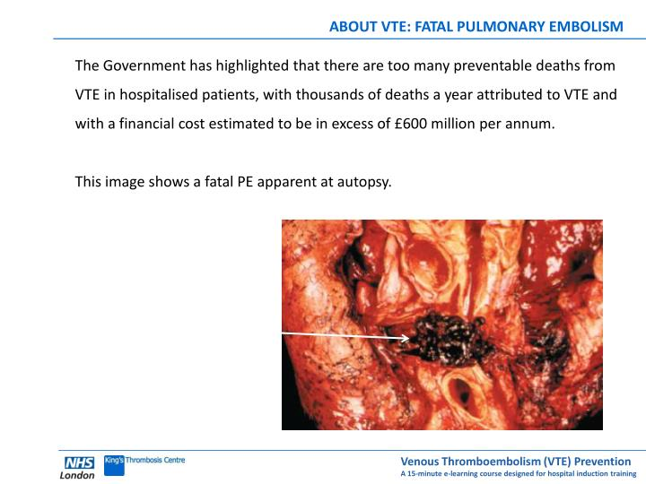 ABOUT VTE: FATAL PULMONARY EMBOLISM