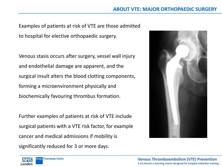 ABOUT VTE: MAJOR ORTHOPAEDIC SURGERY