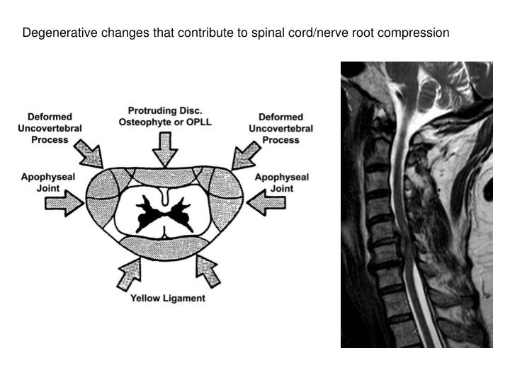 Degenerative changes that contribute to spinal cord/nerve root compression