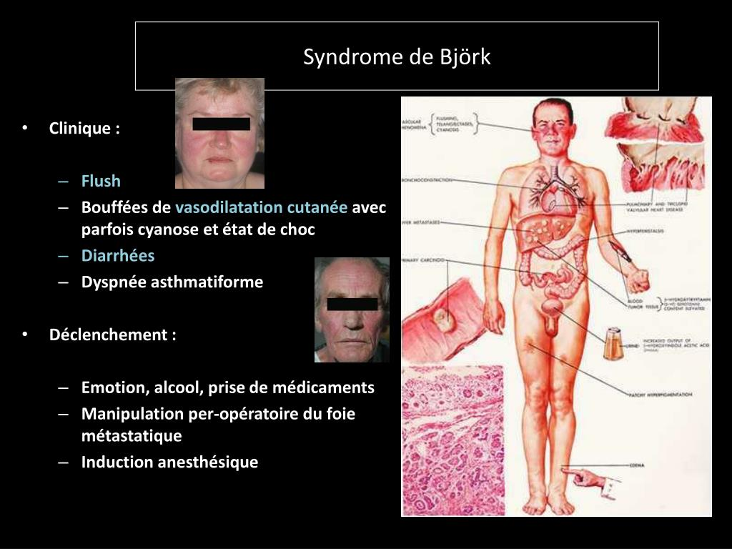 Syndrome de Björk